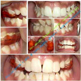 Best dental implant clinic in Hyderabad